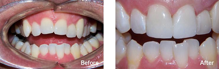 Instant braces