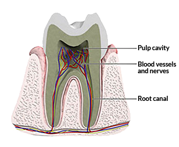 One-Visit Root Canals