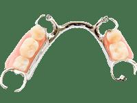metal partial dentures