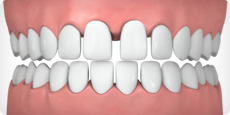 widely-spaced-teeth