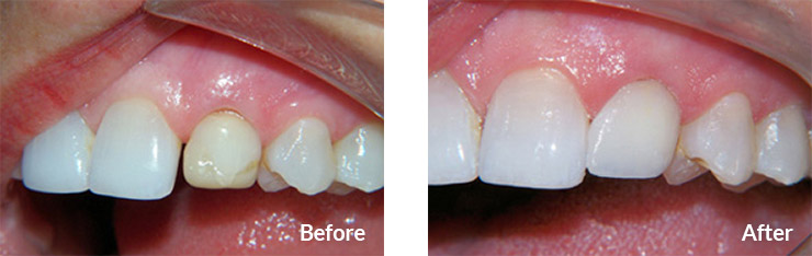 Retained baby tooth replaced with crown