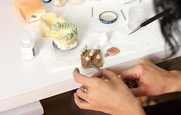 Top-Quality Materials for Optimum Aesthetics and Durability