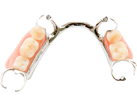 metal partial dentures